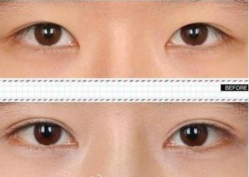 放大心灵之窗:开眼角前后对比图带给人的直观感受