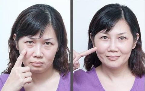 去眼袋手术方法那么多,到底应该选哪种做?