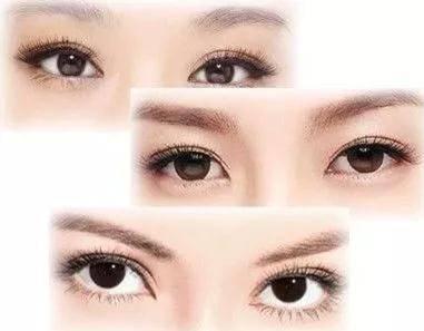 美丽的眼睛哪里找?双眼皮手术后有没有后遗症?